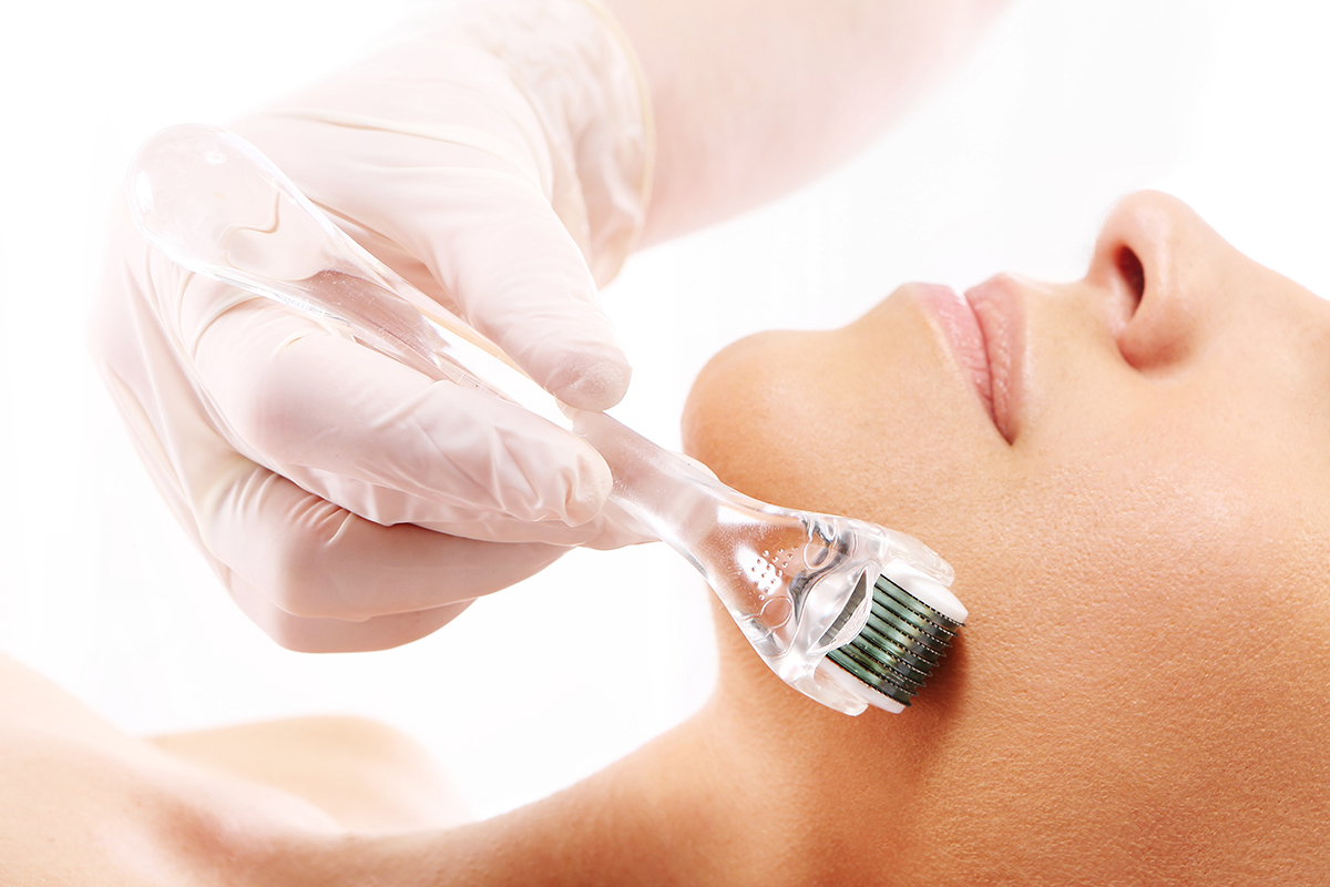 the best micro-needling treatment