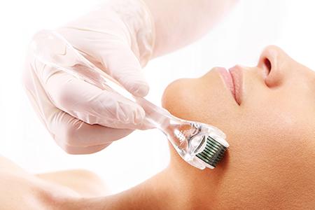 the best derma roller treatment